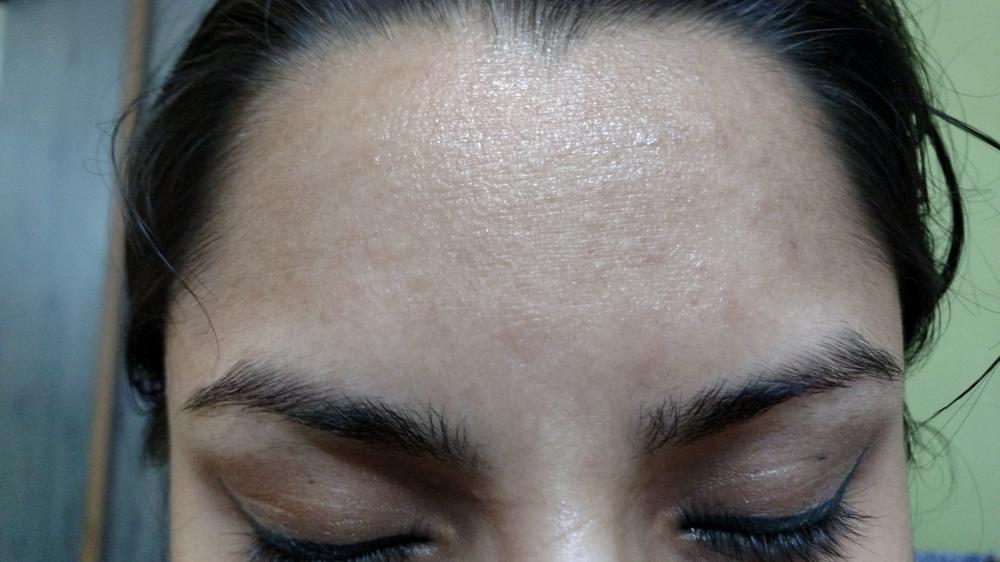 Quand tu as la peau granuleuse - Blog Beauté TitouneBeauty